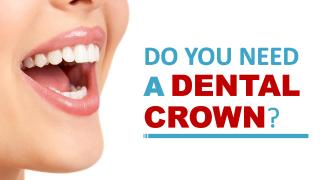 Do You Need a Dental Crown.pdf